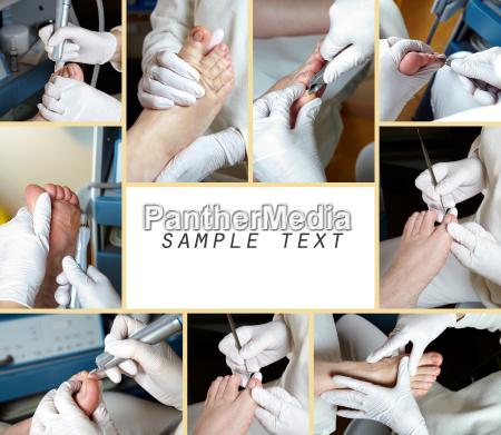 medicinske medicinsk fod behandling neglepleje opretholde