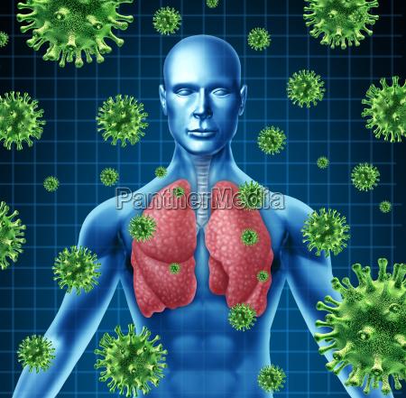 lungeinfektion