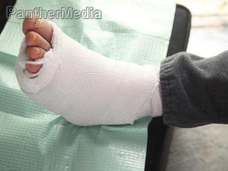 diabetisk fodskade