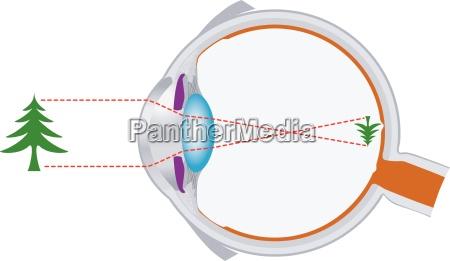 ojeaeble optik og vision objektivsystem