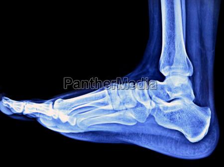 foot x ray