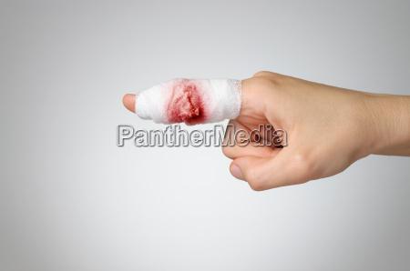 tilskadekomne finger med blodig bandage