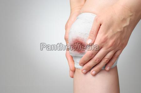 skadet knae med blodig bandage