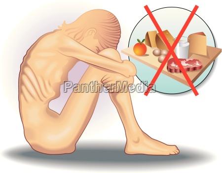 mad levnedsmiddel naeringsmiddel fodevare underernaering anoreksi