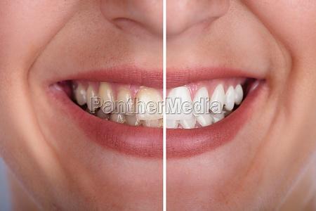 kvinde fnise smiler mund taender behandling